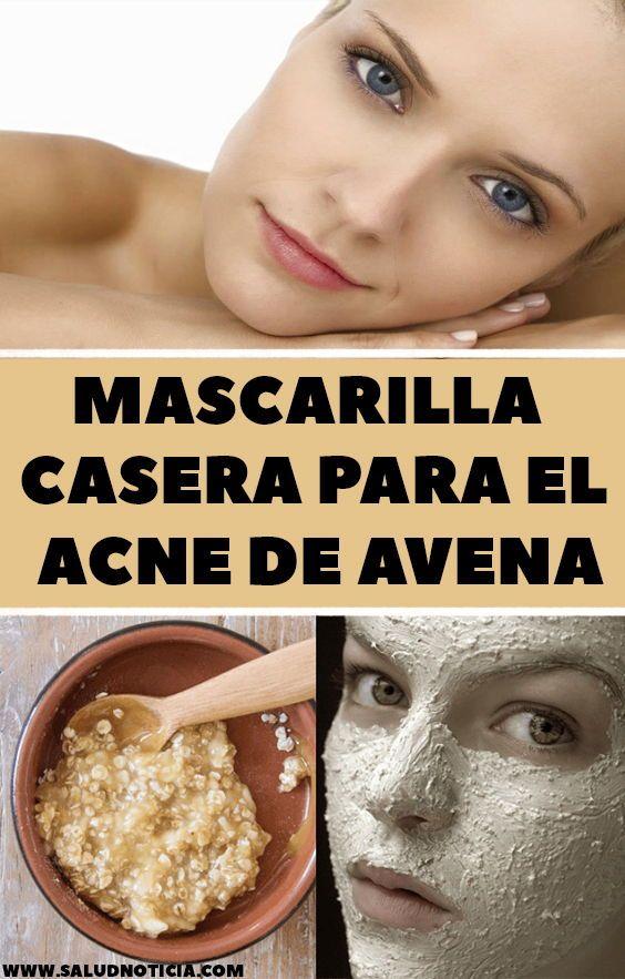 Mascarilla Casera Para El Acne De Avena Clear Skin Fast Acne Anti Acne