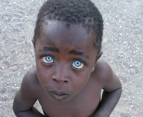 """Menino africano nasce com olhos azuis e é chamado de """"Olhos de Safira"""", CONFIRA!"""