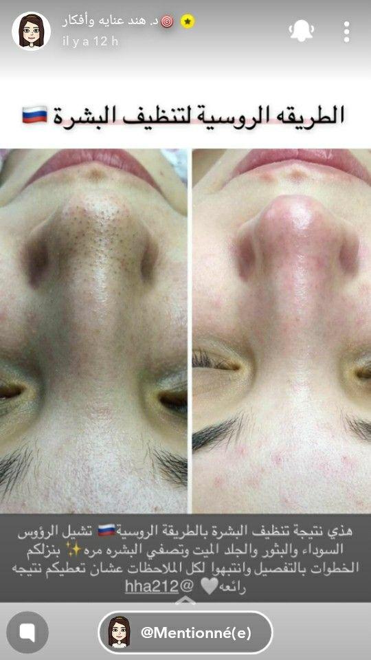 Pin By Msmsy On تنظيف البشرة الروسية Beauty Skin Care Skin Care Beauty Skin