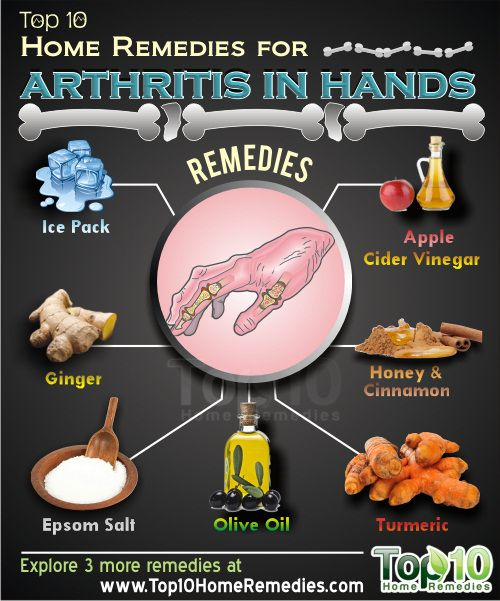 Prev post1 of 3Next Arthritis in the hands is the most common type of arthritis. It occurs as a result of the breakdown of the cartilage that support the bone structure. Since we use our hands and fingers in most activities, arthritis in the hands can be a cause of discomfort and uneasiness. Swollen fingers,