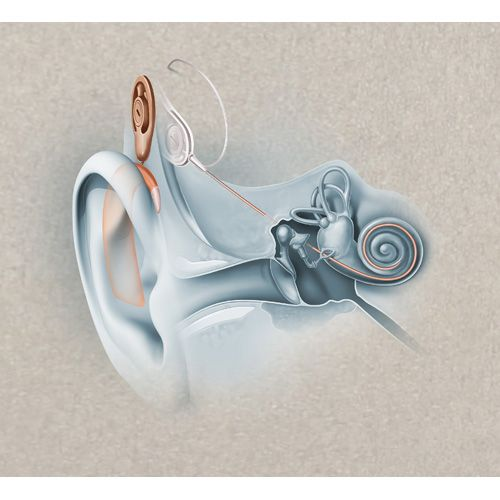 Cochlear Implants And Ears On Pinterest