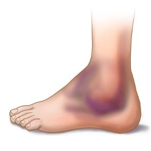 podiatry rhuematoid arthritis University foot and ankle institute podiatrists, surgeons and physical therapists are the very best rheumatoid foot and ankle arthritis specialists in california with a national reputation and a long history of research and development in the disease request an appointment with a doctor at our los angeles or other southern.