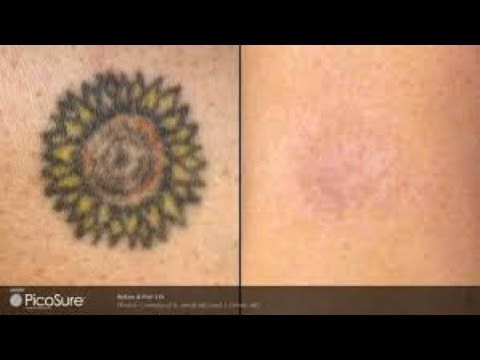 How To Get Rid Of Permanent Tattoo At Home Permanent Tattoo How To Get Rid Tattoos