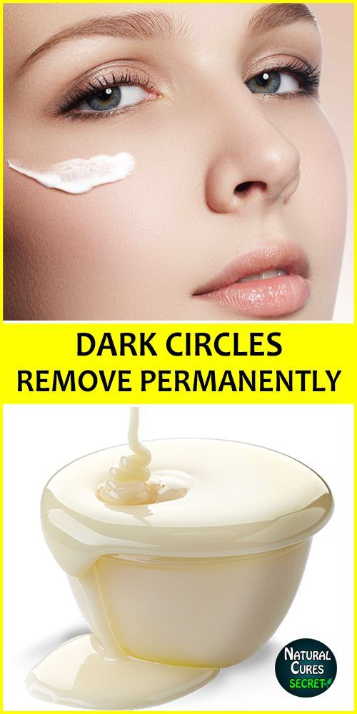 How To Remove Dark Circles Under Eye Permanently In 3 Days Dark Circles Under Your Eyes Can Be Caused Dark Circles Under Eyes Remove Dark Circles Dark Circles