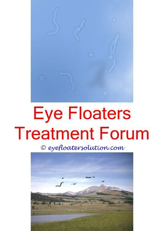 How To Prevent Eye Floaters What Causes Eye Floaters Floaters Eye Eye Floaters Treatment