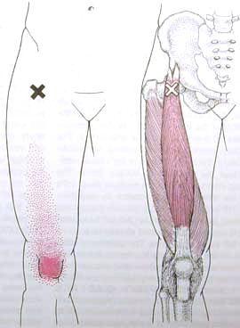 Rectus Femoris Trigger Point Diagram My Style