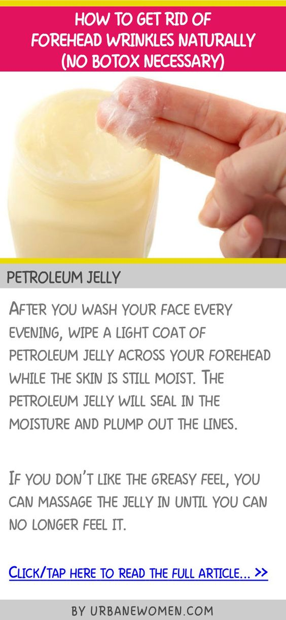 How to get rid of forehead wrinkles naturally (No botox naturally) - Petroleum jelly