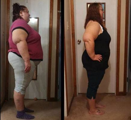 """Another AMAZING Skinny Fiber testimonial from Heather!   All Natural Skinny Fiber~Changing Lives! Order today www.skinnymizfitz.SkinnyFiberPlus.com  Heather says...... """"Here is my story and my before and after pictures everyone has been asking for. I can't believe how much weight I had gained, I knew I had to do something drastic for my health, this isn't easy, but if this helps one person gain their life back, like me and become healthier, it is all worth it! I have much more to lose but I…"""