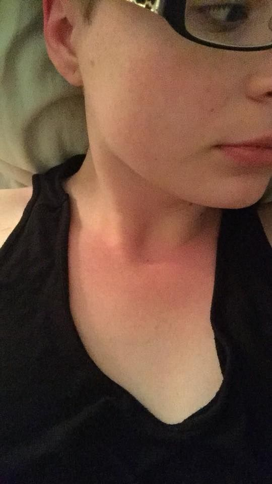 16 Photos That Show How Fibromyalgia Can Affect Your Skin