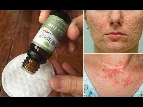 aceite arbol del te para acne