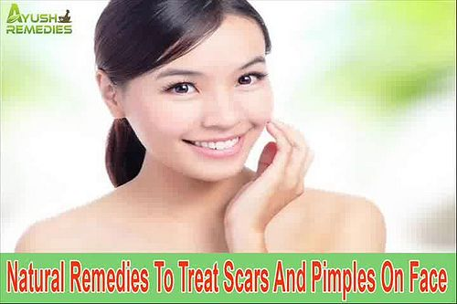 You can find more about the natural remedies to treat scars on face at http://www.ayushremedies.com/acne-skin-care-treatment.htm Dear friend, in this video we are going to discuss about the natural remedies to treat scars on face.  Relying on natural remedies for treating scars and pimples would be a better option as against relying on other methods.