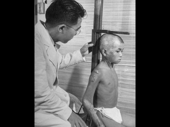 Imágenes muestran terribles efectos de bombardeos atómicos (FOTOS)