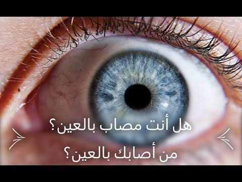 تعرف على كل أعراض العين الجسدية و النفسية بالتفصيل و كيف تعرف من أصابك بالعين Youtube