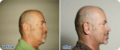 slimchin - Get rid of a double chin or fat neck
