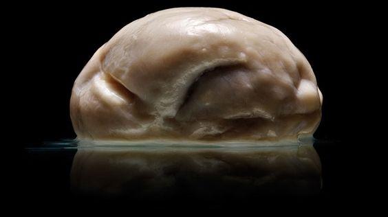 Cérebro sem sulcos e giros | Biomedicina Padrão