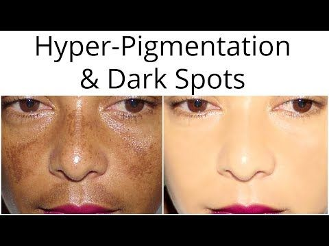 How To Get Rid Of Dark Patches On Black Skin