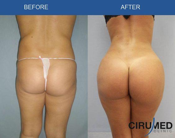 Virtual Butt Surgery 106