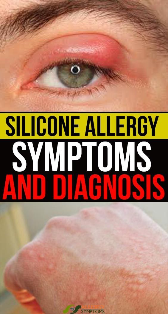 Pin By Whateverever On My Saves In 2020 Allergy Symptoms Allergies Symptoms