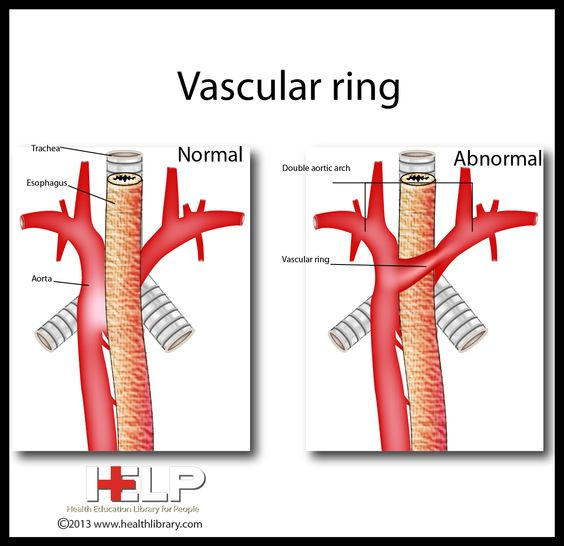 Vascular Ring Anomaly Surgery Cost