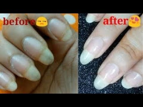 Home Remedy To Get Rid Of Yellow Discolored Nails Guarantee Youtube Nails Remedies Home Remedies