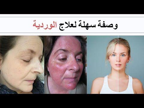 وصفة في دقيقة 13 أصحاب البشرة البيضاء وصفة طبيعية وسهلة لعلاج الوردية Youtube Poster Movie Posters Incoming Call Screenshot