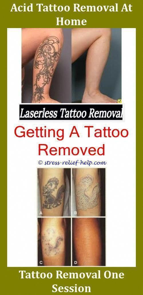 Professional Tattoo Removal Tattoo Removal Jacksonville Nc Salt Tattoo Removal Before And After How Many Ses Tattoo Removal Eyeliner Tattoo Tattoo Removal Cost