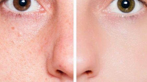 Muitas pessoas odeiam seus poros dilatados em torno do nariz. Além disso, um monte de sujeira pode entrar nesses poros que podem levar a acne ou cravos. Você não pode se livrar dos poros, é claro, mas você pode torná-los menores, sem gastar uma fortuna em produtos cosméticos caros. Pessoas com pele oleosa ou com [...]: