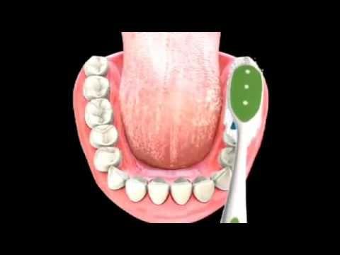 cost of dental bridge | Best Dental Bridges Cost & Review in Atlanta GA - YouTube