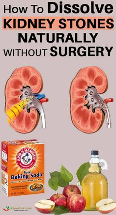 In Case You Missed How To Dissolve Kidney Stones Naturally Without Surgery