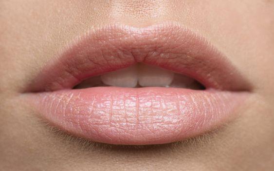 como-deshacerse-arrugas-labios-remedios-caseros
