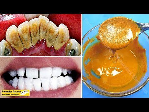 Limpia Tus Dientes Sólo Con Esta Mezcla Elimina La Placa Dental Y El Sarro Rápidament Placas Dentales Blanqueamiento Dental Casero Productos De Higiene Bucal