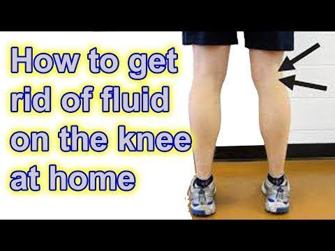 7f065611c272d627522666ea1154a7d2 - How To Get Rid Of Swelling And Fluid In Knee