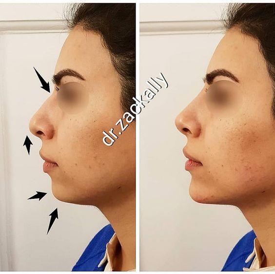 Îngrijirea feței