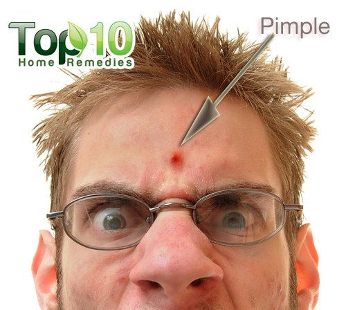 How to get rid of pimples in 2 hours