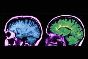 esclerosis múltiple