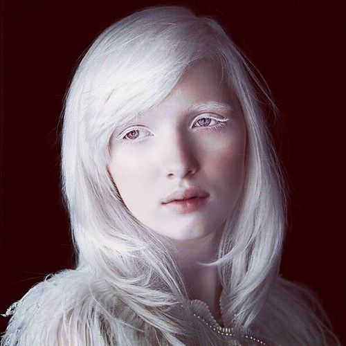 7fb64af433ab3c9ded3ac62e42abc564 The Most Beautiful Albino Girl in the World