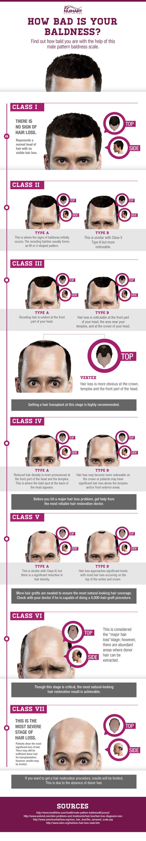 Stages of Male Pattern Baldness - Hair Loss Chart Infographic #men #medical #aging