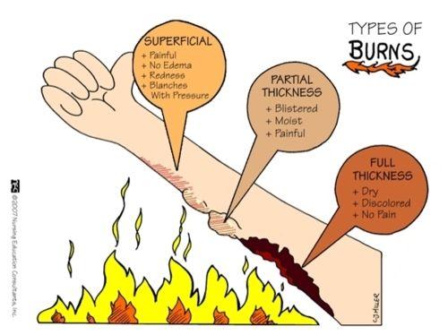 types of burns.