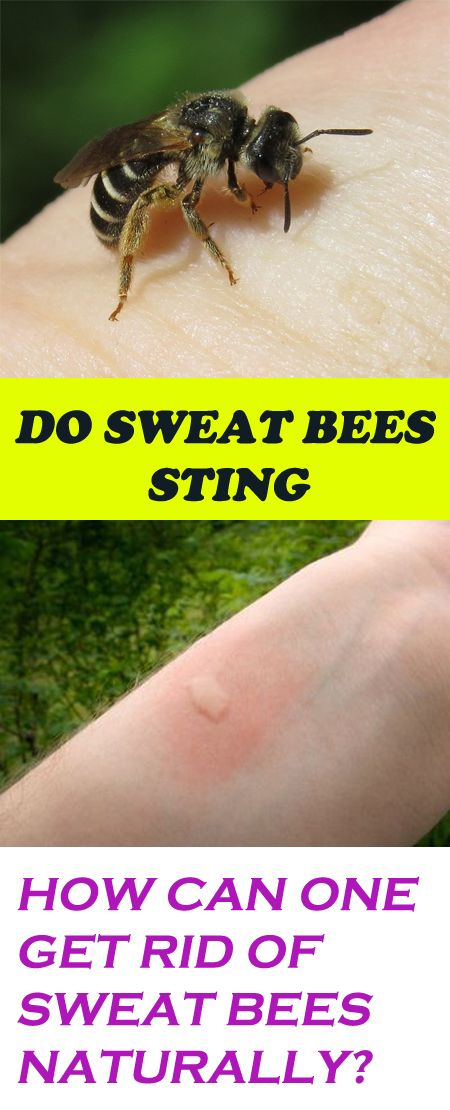 Do You Know That Sweat Bees Sting And How To Get Rid Of Them Naturally Sweat Bees Sweat Bee Sting Bee Sting