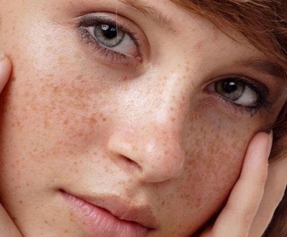 Nám da có lan không, nguyên nhân gây nám da và cách chăm sóc làn da bị nám