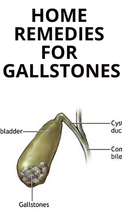 Home Remedies For Gallstones In 2020 Gallstones Home Remedies Gallbladder