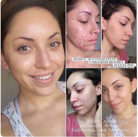 Wow Amazing Results Again From R F S Unblemish Regimen You Don T Have To Suffer With Acne A Serious Skin Care Sensitive Skin Care Anti Aging Skin Care Kits