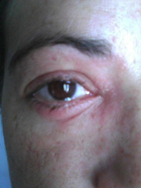 Beginning Of Shingles In Eye Not Good Pinterest Eyes