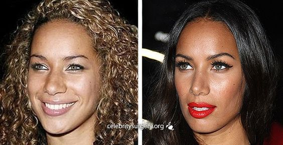 Celebrity Leona Lewis before and after plastic surgery images nose job rhinoplasty, Celeb nosejob images before and after plastic surgery.Visit us at http://www.drgregpark.com/nose-surgery for more information about rhinoplasty surgery
