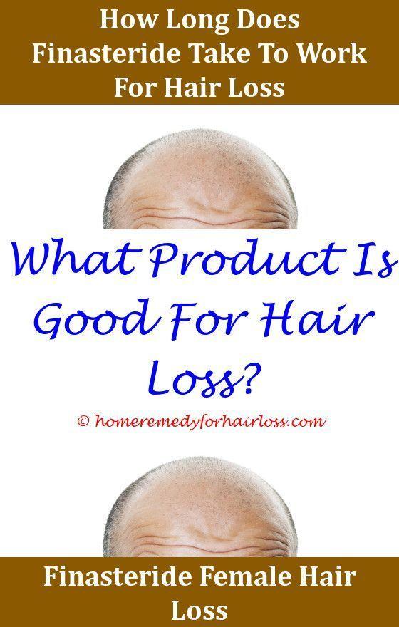 Hair Loss Hair Loss Talk Forum Somebody What Can Cause Sudden Hair