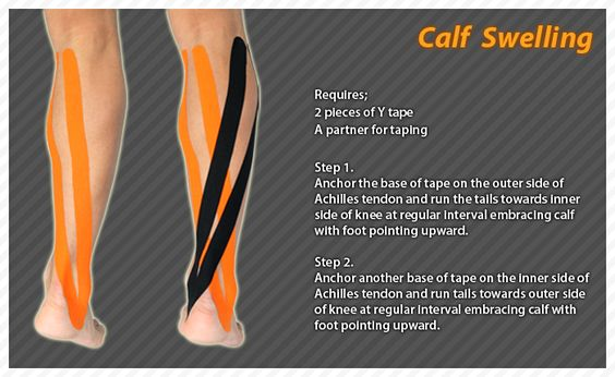 "Injury to the calf muscle caused by strain leads to swelling. Bruising might be present. Strain occurs when the muscle fibers tear. If the calf muscle is partially or completely torn, bruising swelling and pain are present. Rupture can sometimes be obvious if the muscle ""balls up"" at the top of the calf. #Ares #Kinesiology #Tape #Taping"