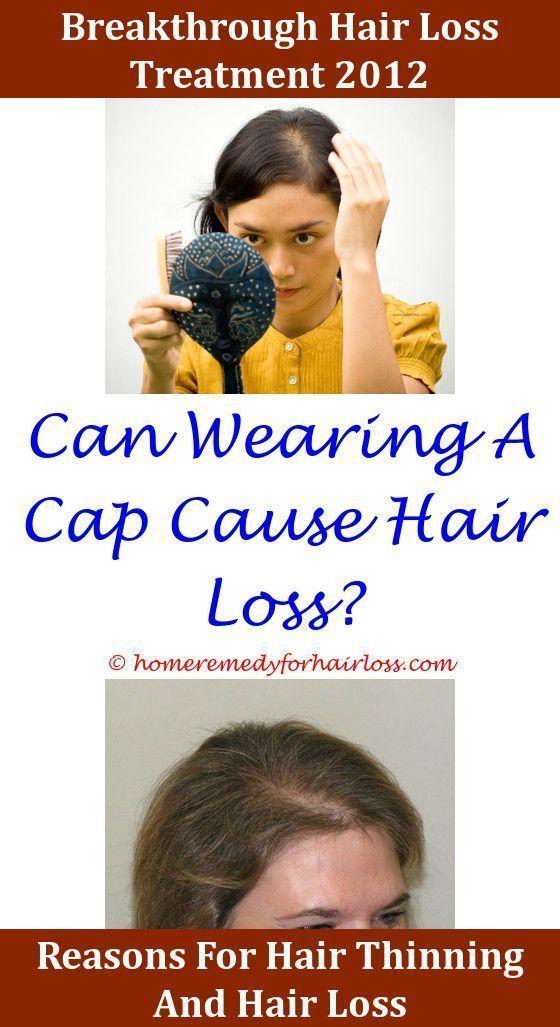 Hair Loss Spinal Nerve Compression Hair Loss Larry Shapiro Whey Protein Isolate Hair Loss Goat Milk F Hair Loss Pills Stress Hair Loss Best Hair Loss Treatment
