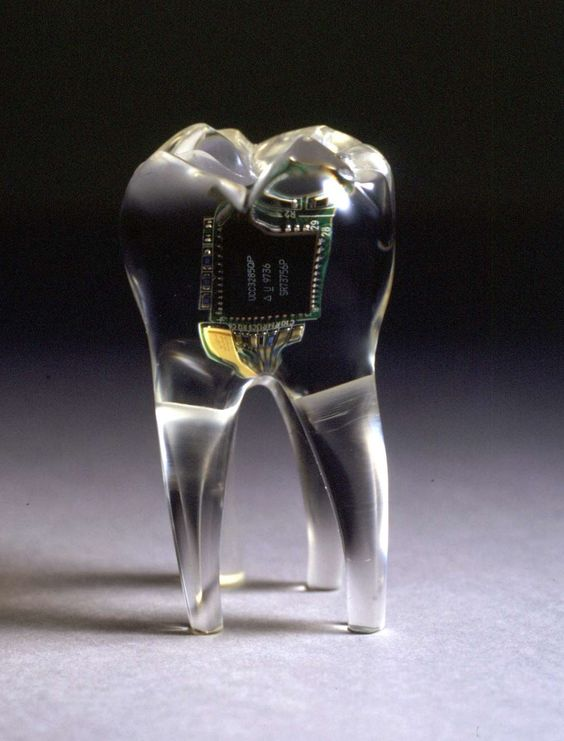 """""""The Audio Tooth Implant is a radical new concept in personal communication. A miniature audio output device and receiver are implanted into the tooth during routine dental surgery. These offer a form of electronic telepathy as the sound information resonates directly into the consciousness."""""""