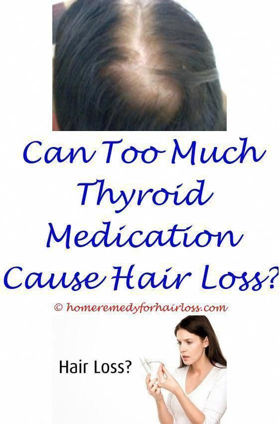 Female Hair Loss Can Be Terrifying Right Here Are One Of The Most Usual Reasons For Women S Hair To Befall Hair Loss Women Hair Loss Cure Hair Loss Remedies