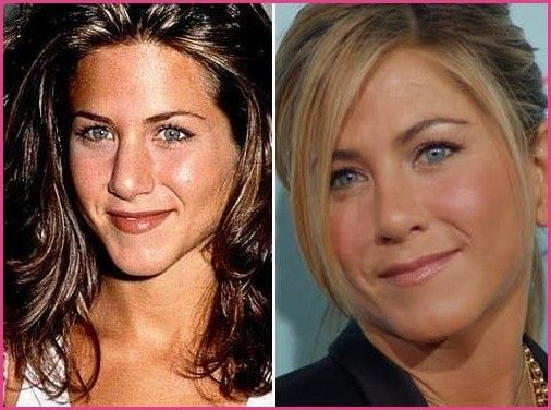 20 Celebrity Nose Jobs You Won T Believe The Hollywood Gossip Plastic Surgery Bef Jennifer Aniston Nose Jennifer Aniston Nose Job Celebrity Plastic Surgery